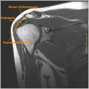 MRT der Schulter: Diagnose 1,6 x 0,4 x 0,6 cm große Verkalkungen im distalen Drittel des vorderen Zügels der Supraspinatussehne ¹). Die Verkalkung wölbt sich schon in die gereizte Bursa ²) vor.
