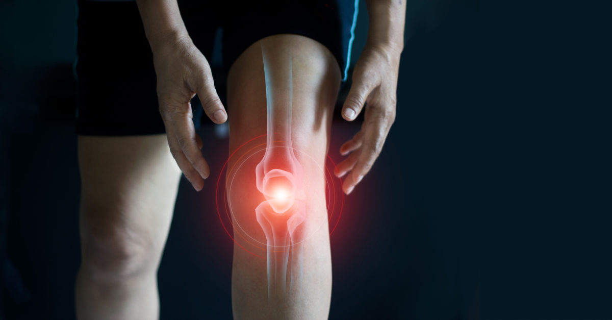 Knie im Fokus: Patellofemorales Schmerzsyndrom